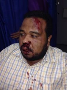 El locutor Daniel Lara salvajamente golpeado al salir de la emisora de radio donde trabaja en Caracas.